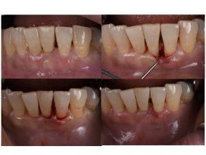 歯周病治療 歯周組織再生療法