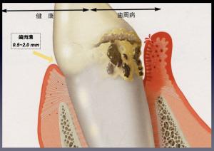 歯周病ケア、定期チェックをお勧め致します。